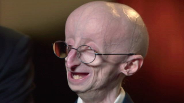 Sam Berns